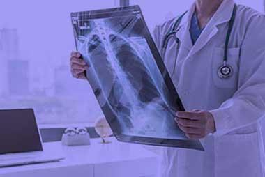 Göğüs Cerrahi